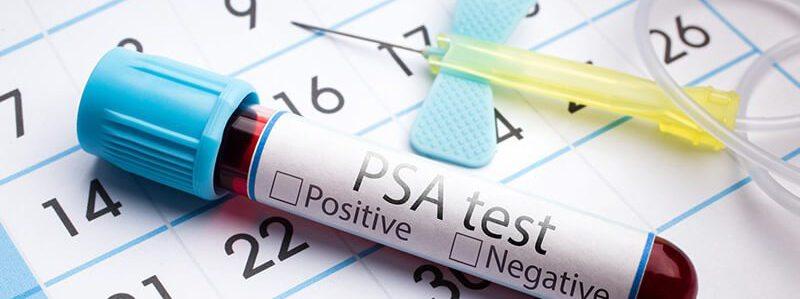 Bluttest ob PSA Wert erhöht ist, als Hinweis auf Prostatitis