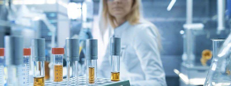 Labor mit Urinproben, die mittels 3-Gläser-Probe gewonnen worden sind.
